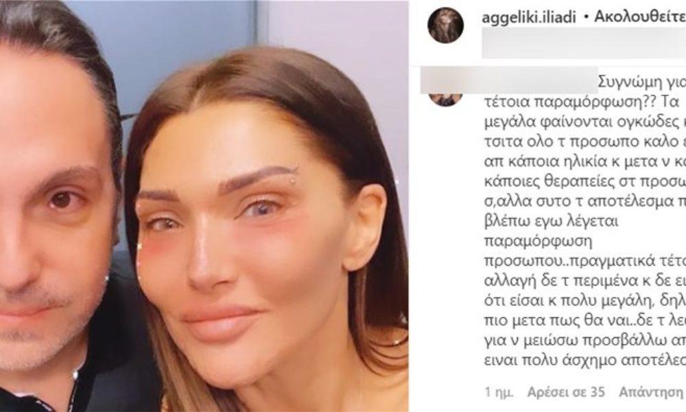 Αγγελική Ηλιάδη: Follower της είπε ότι παραμορφώθηκε- Δείτε τι απάντησε!